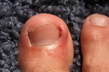 Can Ingrown Toenails Become Infected?
